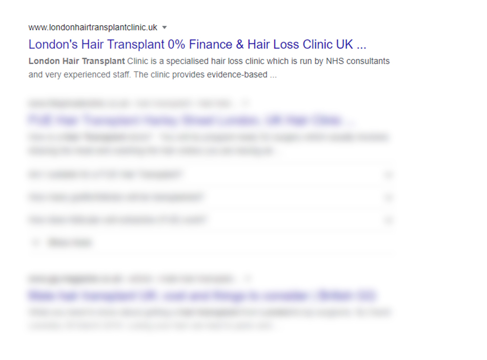 London's hair Transplant